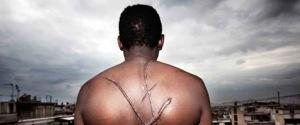 Grèce : Nouveau berceau du #racisme sans graisse